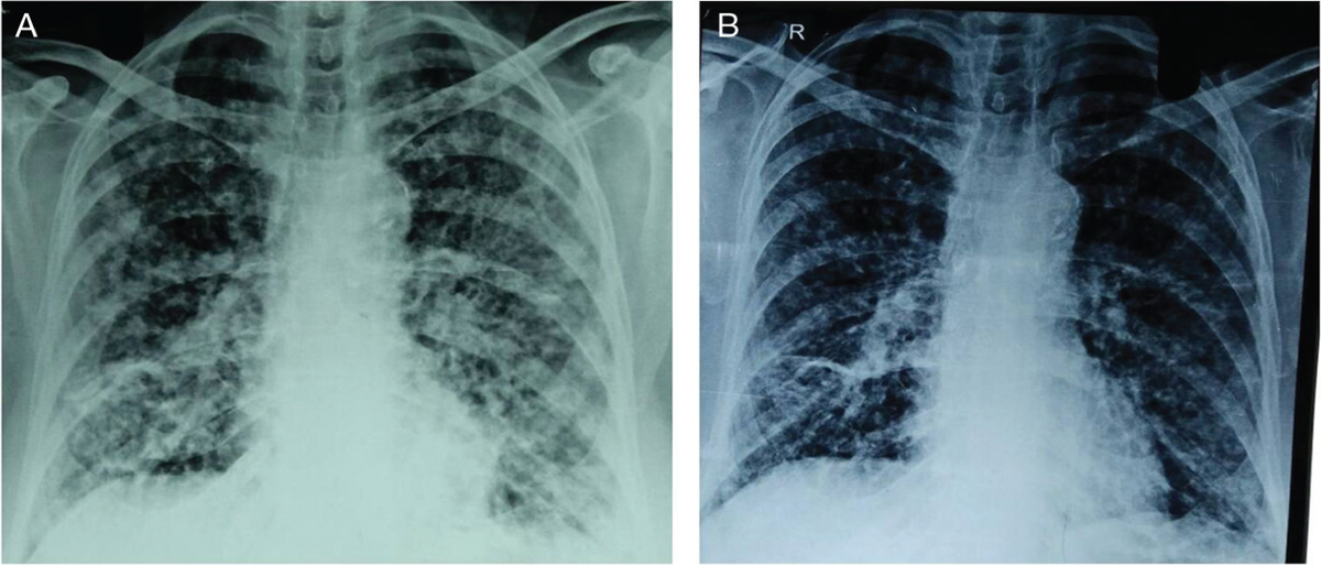 Figure 1: (a) On admission, chest X-ray indicated bilateral hilar prominence with parenchymal involvement (stage 4). (b) Chest X-ray on follow-up after 2 months showing a clearing of the lesions