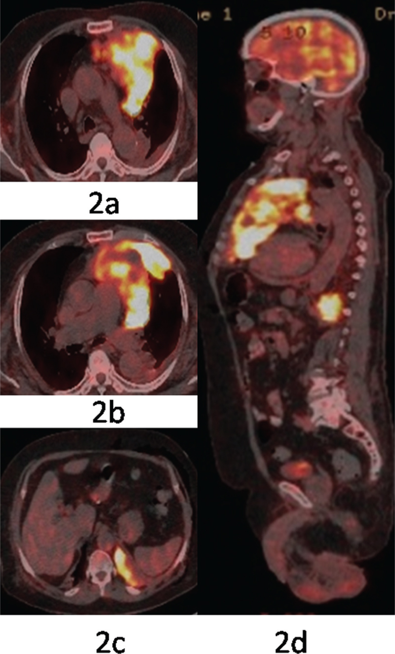 Figure 2 (a–d) PET–CT showing soft tissue heterogamous mass lesion in left upper lobe (10.3 × 10.2 × 8.7 cm<sup>3</sup>) of SUV<sub>max</sub> 15, infiltrating mediastinum, abutting the pericardium, and main pulmonary artery with pleural deposit posteriorly along with pleural effusion on left side (SUV<sub>max</sub> 9.8)