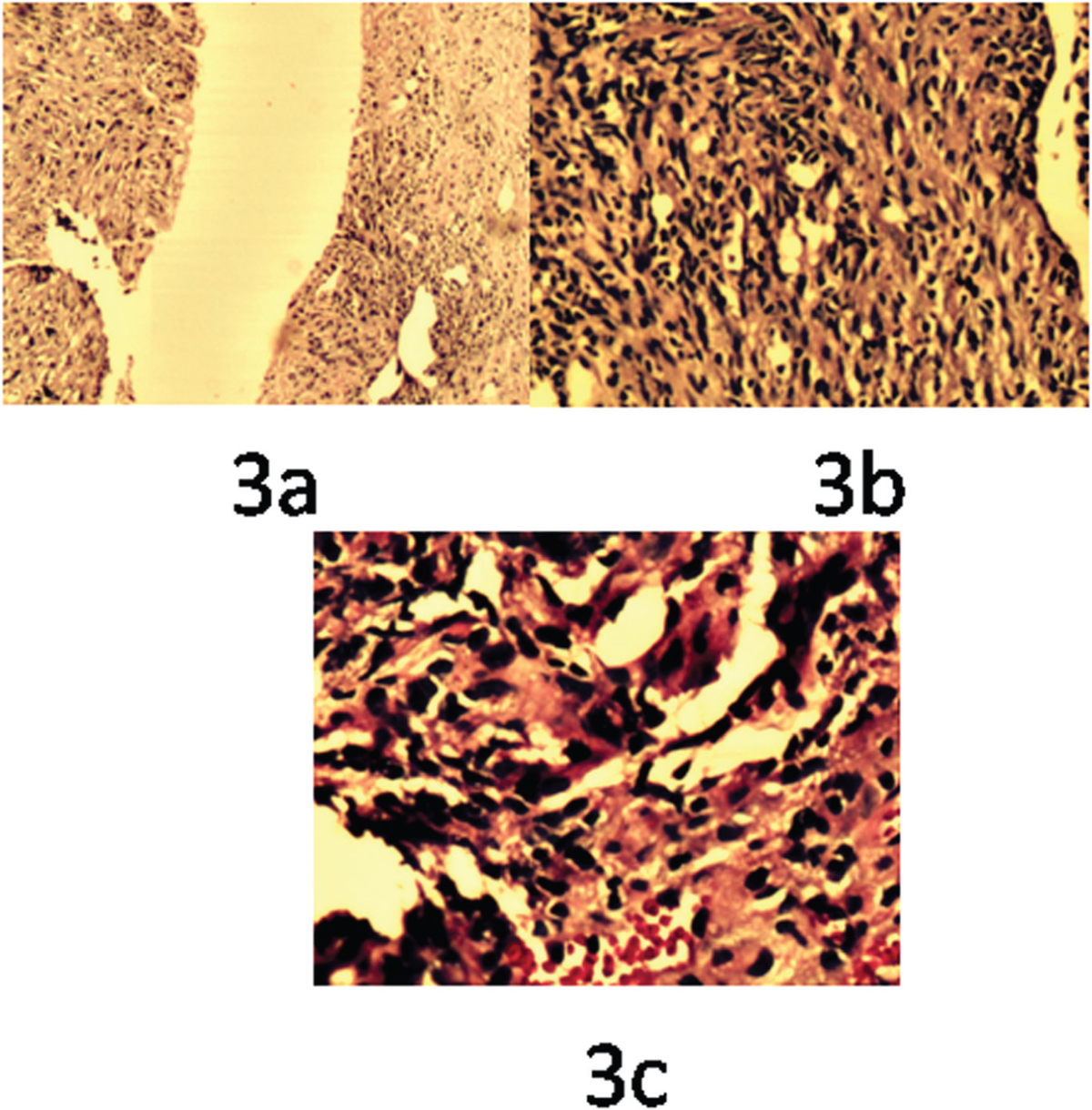 Figure 3 Trucut biopsy of lung on histopathological examination (HPE) with H&E stain showing spindle-cell tumor with fascicular arrangement of tumor cells. Individual cells showing hyperchromatic nuclei, inconspicuous nucleolar (pleomorphism and mitosis with necrosis) (a and b). Pleural biopsy on HPE with H&E stain showing mesothelial proliferation and foci of atypical spindle cell proliferation (c)