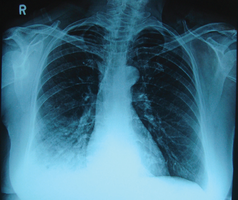 Figure 1 PA of the chest X-ray showing dense opacity in right lower zone