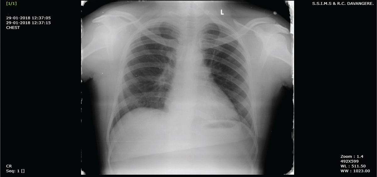 Figure 3 Complete resolution of chest radiograph at 6-week follow-up.