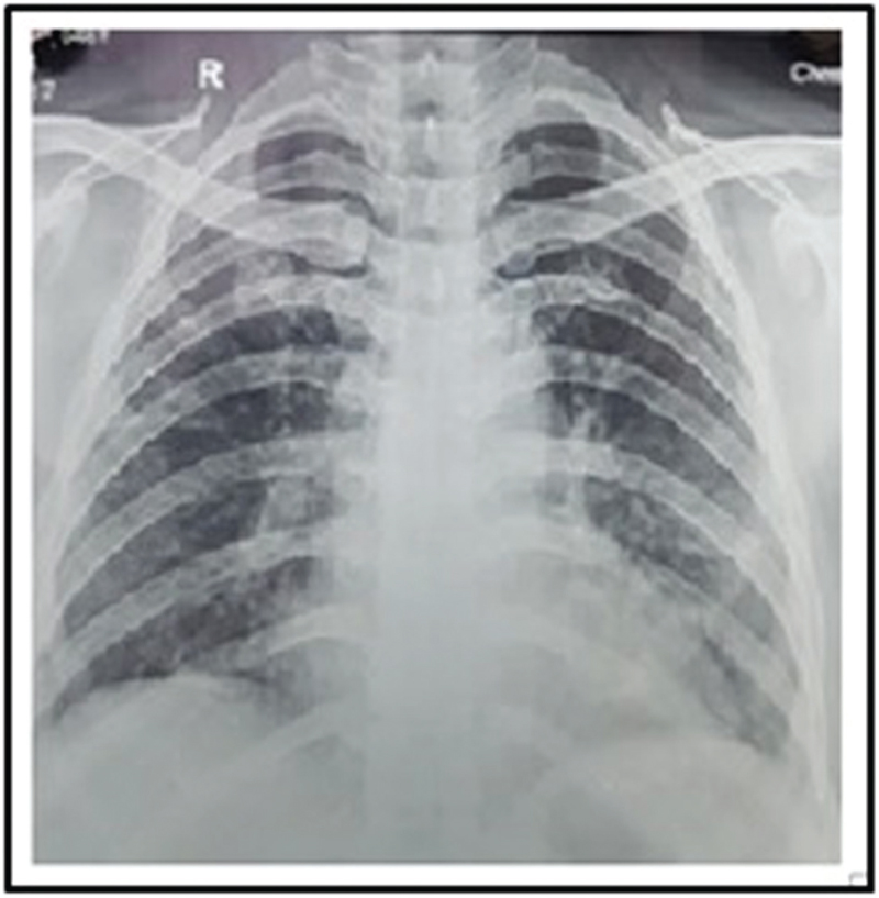 Figure 3 Chest X-ray showing resolution of opacities.